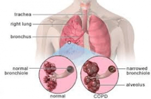 Lungs COPD