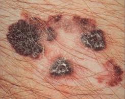 Malignant-melanoma skin cancer