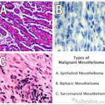 types-of-malignant-mesothelioma